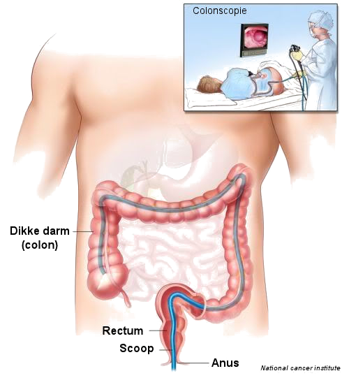 colonoscopy procedure position significantly - photo #34